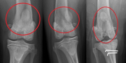 immer spannung im knie nach arthroskopie